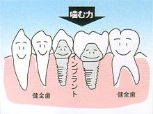 インプラント - 歯が中間で2本抜けた場合