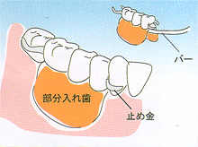 入れ歯 - 部分入れ歯