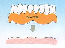 入れ歯 - 総入れ歯