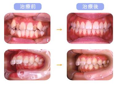 非抜歯矯正 - 治療前と治療後