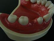ブリッジ w/歯茎