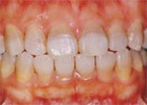 審美歯科 - ラミネートベニア術前