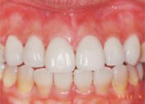 審美歯科 - ラミネートベニア術後