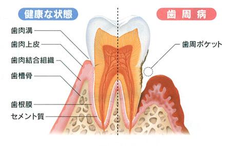 健康な状態と歯周病