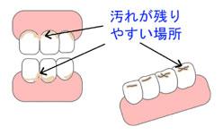 予防歯科/歯磨き法