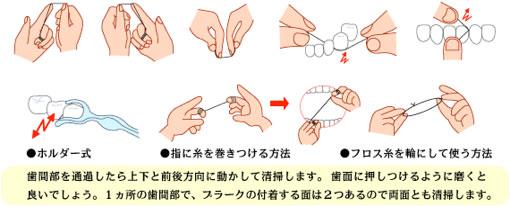予防歯科/歯磨き法 デンタルフロス