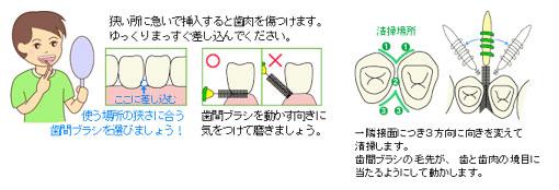予防歯科/歯磨き法 歯間ブラシ