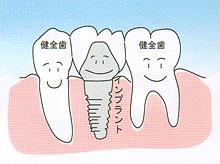 インプラント - 歯が中間で1本抜けた場合