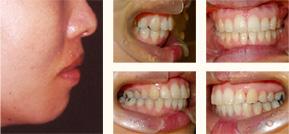 矯正歯科症例 治療後