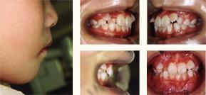 矯正歯科症例 治療前