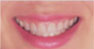 あなたのお口にぴったりフィットする 快適入れ歯