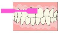 予防歯科/フォーンズ法