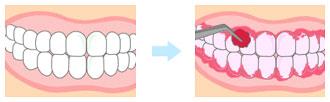 予防歯科/プラーク(歯垢)染め出し前・染め出し後