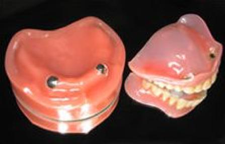 あなたのお口にぴったりフィットする 快適入れ歯 マグネット義歯