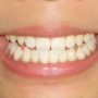 その歯並び、ひょっとして舌癖が原因かも?