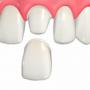 ウォーキングブリーチ法~神経がない歯のホワイトニング