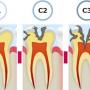 虫歯治療の手順