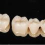 虫歯治療のつめ物とかぶせ物